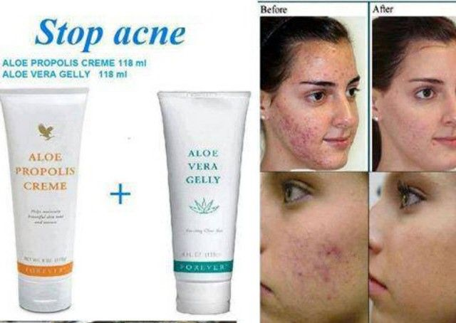 how to use propolis for acne